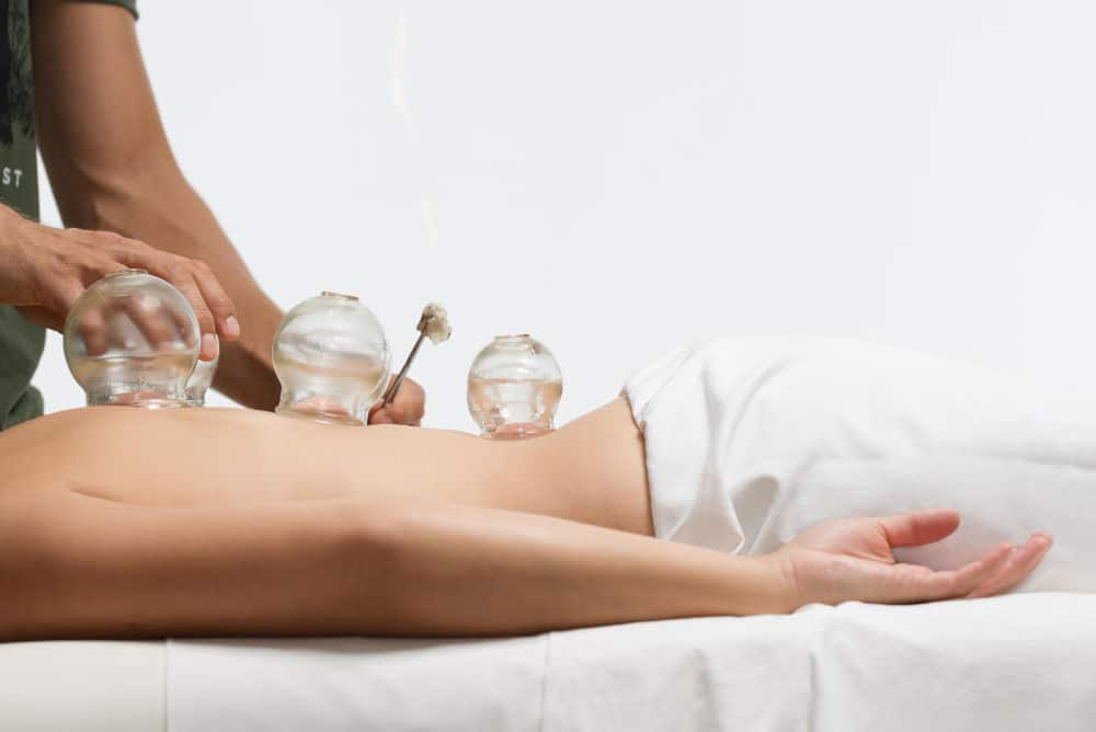 Cabinet d'acupuncture Yvelines - Ventouses / Cupping